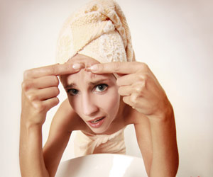 alimentation anti-acné