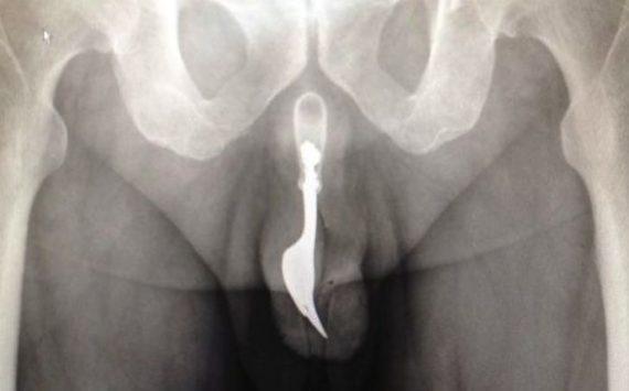 Insolite: A 70 ans, il se coince une fourchette dans le pénis