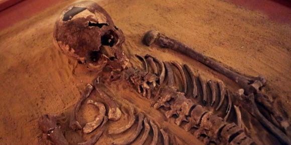 Le cancer le plus vieux du monde découvert au Soudan