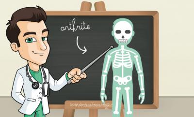 arthrite alimentation