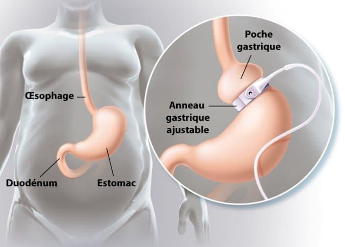 Anneau gastrique